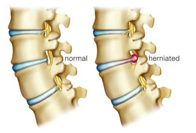 view-herniated-discs